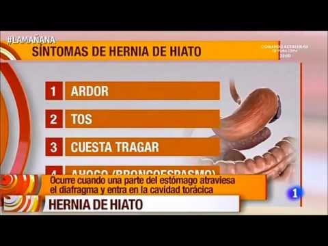 hernia de hiato sintomas fotos