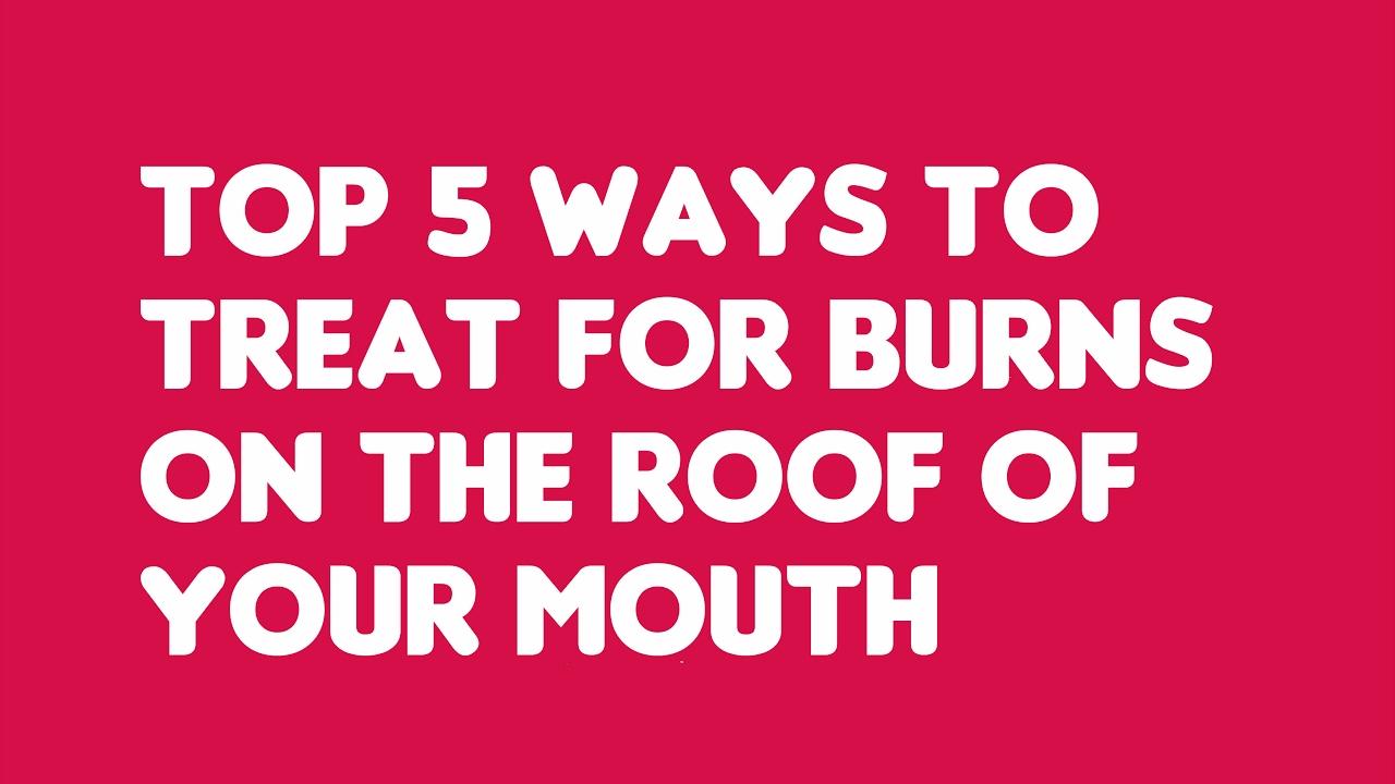 Watch 5 Ways to Treat a Burn video