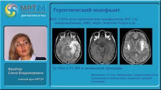 МРТ в диагностике энцефалитов