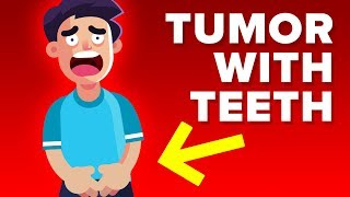 Man Grows Tumor With Teeth Inside Testicles