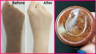 Magical Homemade Skin Whitening Soap | Removes Suntan, Dark spots, Acne-Pimples