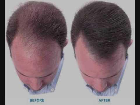 Spray on hair commercial ad - YouTube