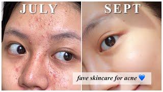 Rekomendasi Skincare utk Jerawat (kombinasi berminyak)