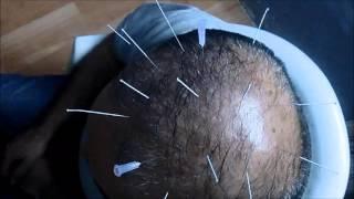 Hair loss treatment , Dr Kunal