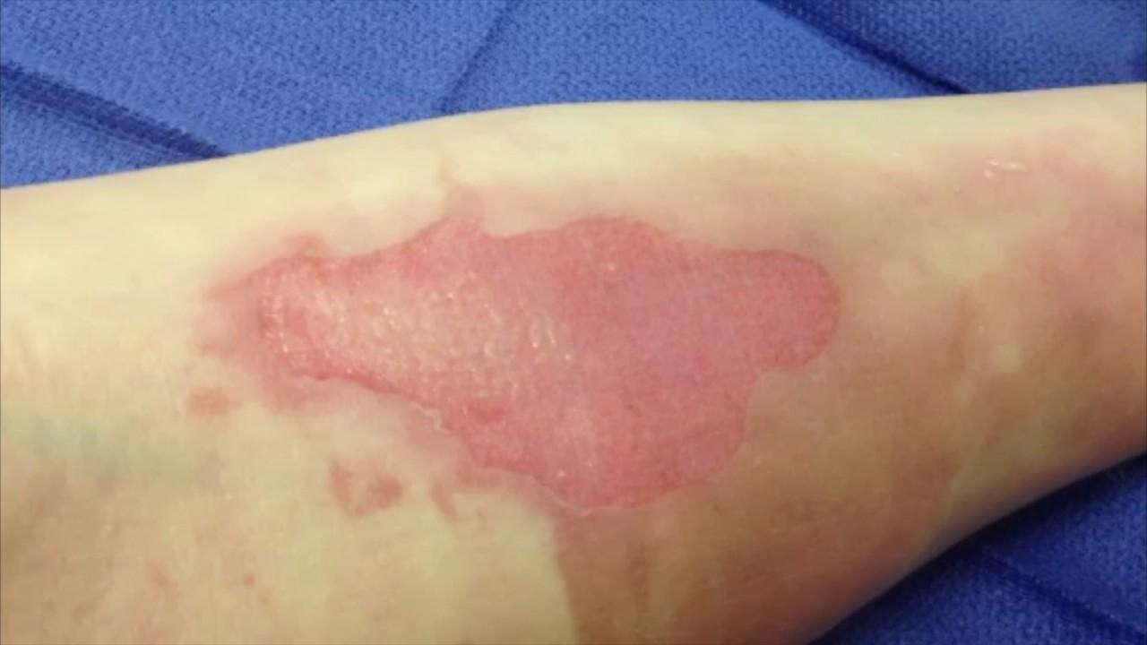 Capillary Return In Superficial Dermal Burns