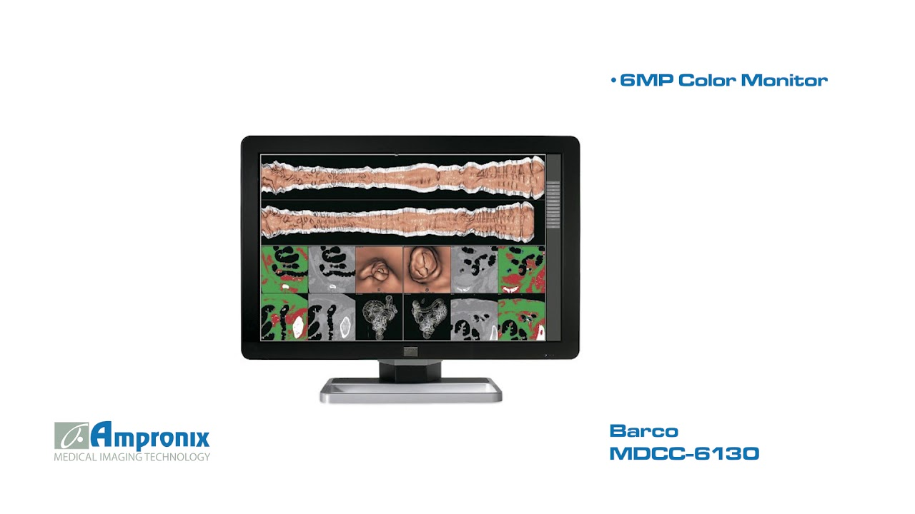 BARCO MDCC 6130 DRIVERS FOR WINDOWS 7