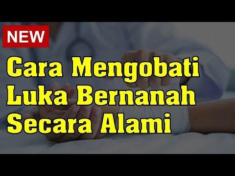 Cara Mengobati Luka Bernanah Secara Alami - YouTube