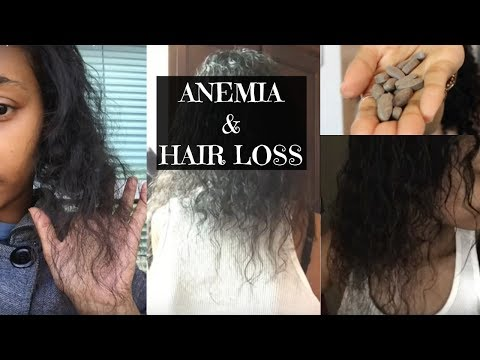Anemia & Hair Loss: My Story and Recovery | Amena