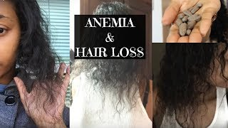 Anemia & Hair Loss: My Story and Recovery