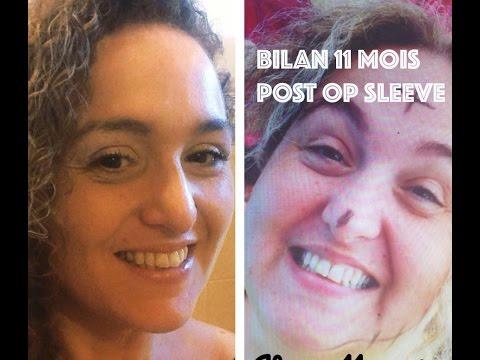 #47 Bilan 11 mois post sleeve : j'ai perdu 51,4 KG