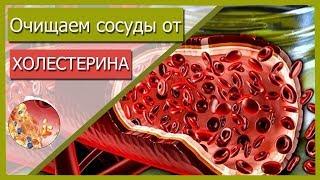 Очищение сосудов от холестерина. ПРОДУКТЫ, РЕЦЕПТЫ от атеросклероза