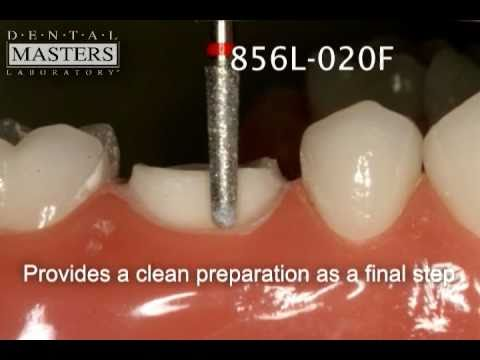 Perfect Prep Bur Kit for e.max CAD by Dental Masters Laboratory