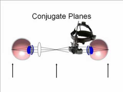 Lecture 7, Conjugate Planes