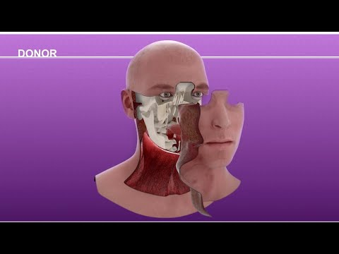 Cameron Underwood Face Transplant Surgical Animation 2018