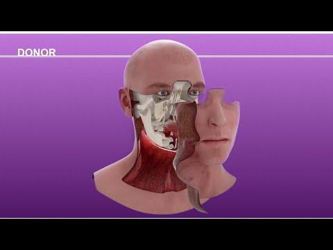 Cameron Underwood Face Transplant Surgical Animation 2018