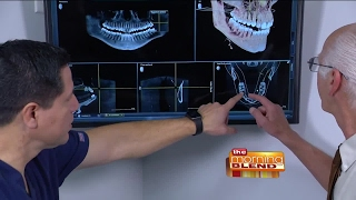 Affordable State-of-the-Art Dental Implants
