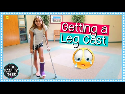 GETTING A LEG CAST FOR BROKEN FOOT  DANCE INJURY