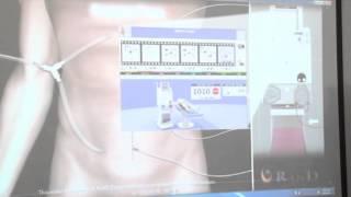 Chimioterapia intraperitoneala-HIPEC, premiera la Spitalul Sf. Constantin