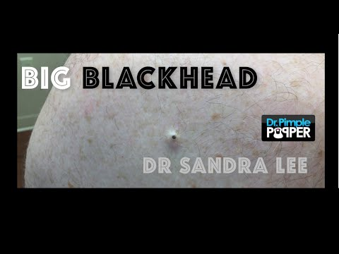 Big blackhead on the back extracted. - YouTube