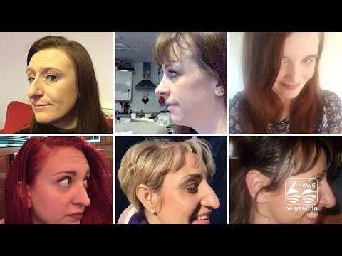 Twitter users share photos of big noses to break the taboo
