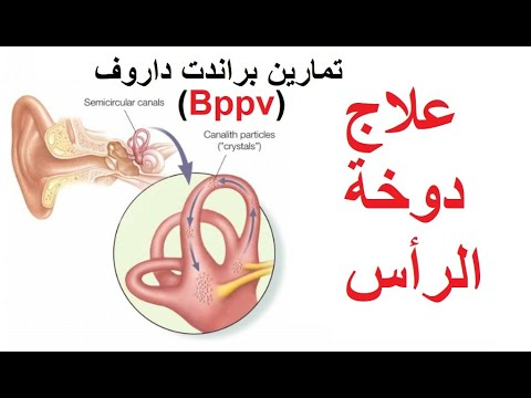علاج دوخة الراس تمارين براندت داروف Bppv في دقيقتين Youtube