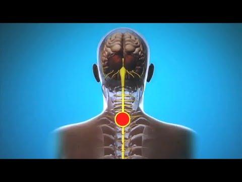 Шейный остеохондроз может привести к инсульту