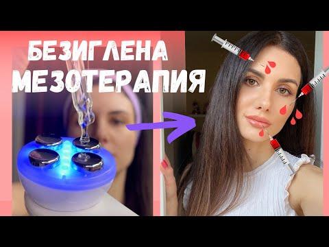 БЕЗИГЛЕНА МЕЗОТЕРАПИЯ В