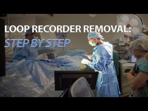 Getting Your Loop Recorder Removed? Watch A Live Procedure!