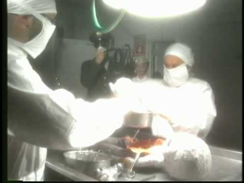 Alien Autopsy From Roswell The Naked Truth Revealed