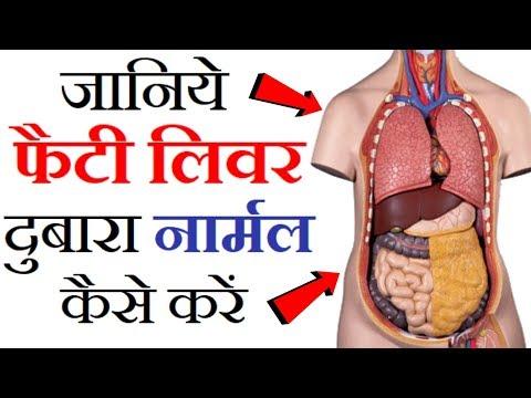 फैटी लिवर के लक्षण और घरेलू उपचार | How To Reverse Fatty Liver Naturally | Fatty Liver Home Remedy
