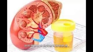 肾内科医生说:想要有效降低尿蛋白水平,这两方面最关键!