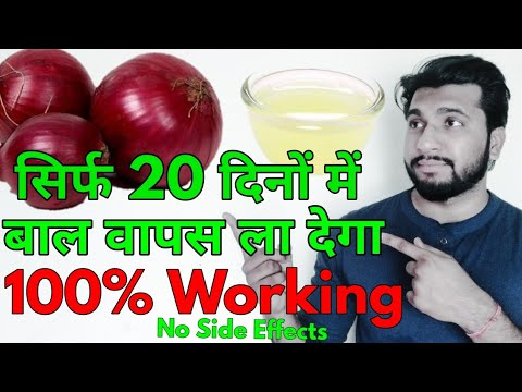 How To Use Onion For Hair Regrowth In 20 Days With Aloe Vera & Onion Juice | Best for Baldness 2018