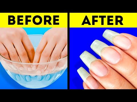 26 AWESOME NAIL HACKS YOU WILL DEFINITELY LIKE