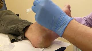 Injection - plantar fibroma with peppering