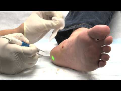 Laser treatment for Warts using the FOX Laser