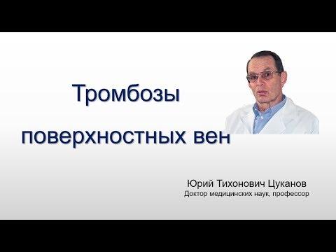 Тромбофлебит (варикофлебит) поверхностных вен. Лекция для врачей