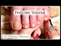 👣Pedicure Tutorial:  How to Remove Dead Skin on Toenails 👣