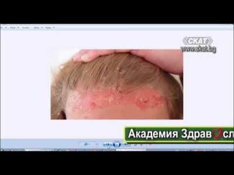 Как се лекува псориазис - съвет от препатил - psorilin.hriciscova.com Форуми