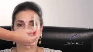 Botulinum Toxin - Marking The Face