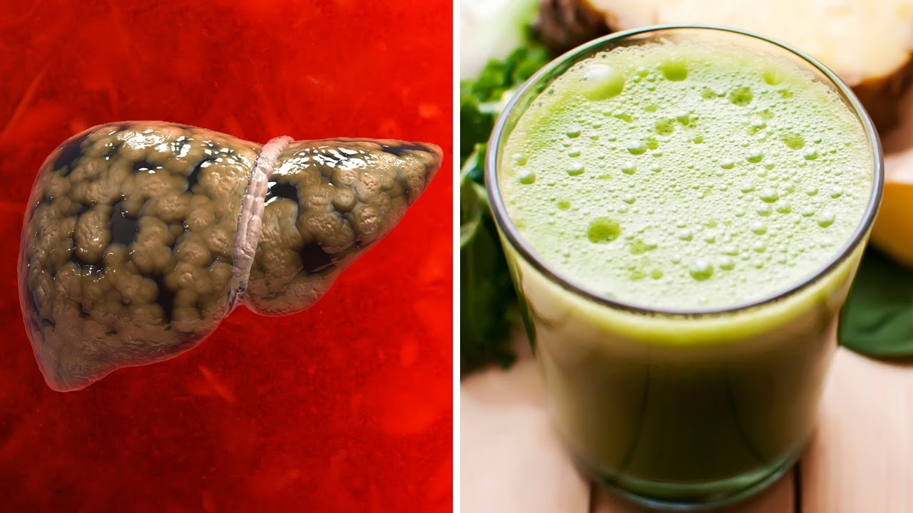 Cleanse Your Liver Naturally With This Amazing Detox Drink