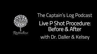 Live P Shot Procedure - Before & After