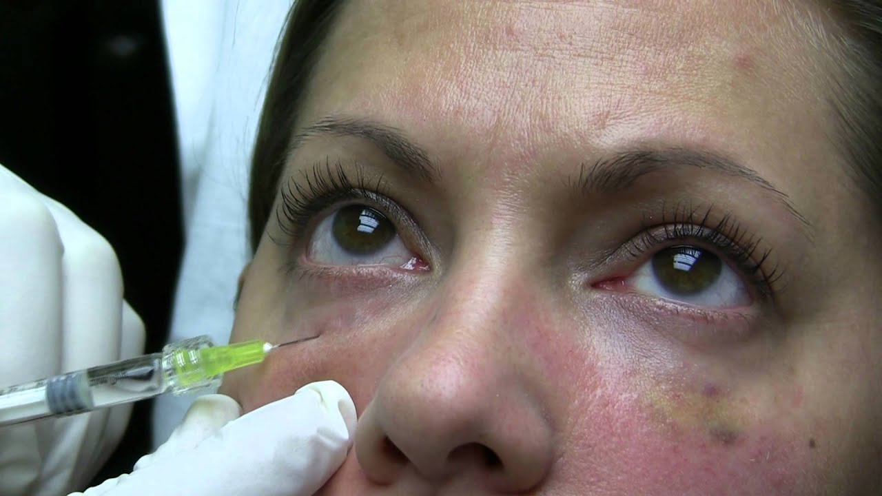 Fillers Midface Richmond VA | Filler Augmentation of Cheeks