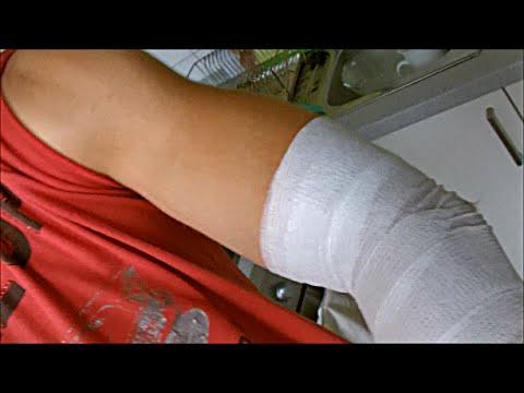 Gebrochen gips juckt arm Jucken heilende