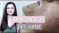 hqdefault - Do Omega-3 Fatty Acids Help With Acne