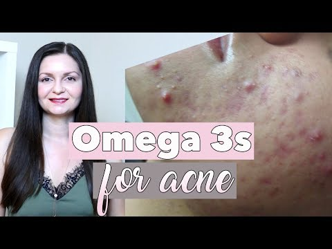 hqdefault - Omega 3 Acne Forum