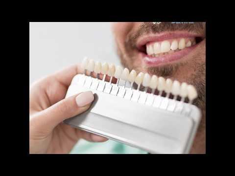 [forest-lane-dental]-case-study:-anterior-bridge-(teeth-#24,-25,-26)