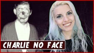 Charlie No Face - La storia vera | Bix's Coven