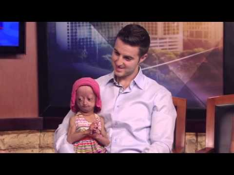 Adalia Rose, 6-Year-Old With Premature Aging, Promotes Fundraiser For Progeria Cure