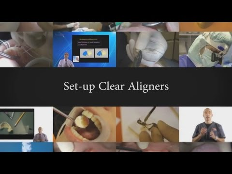 Dr. Rafi Romano - Set-up Clear Aligners
