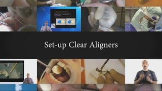 Set-up clear aligners